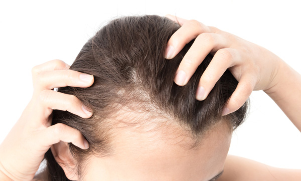 Home remedies for hair loss in simple ways