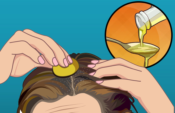 Dandruff: 5 Home Remedies