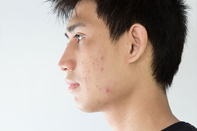 what causes acne on cheeks