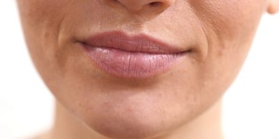 Wrinkles around the mouth? Follow these dermatologist tips