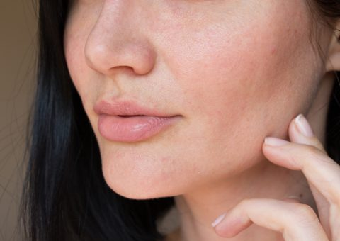 Dry skin: 6 moisturizing active ingredients
