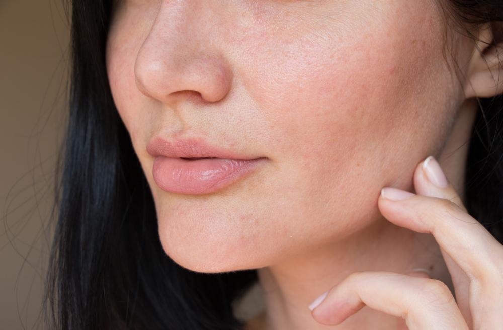 Dry skin: 6 moisturizing active ingredients